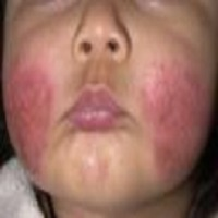 dermatitis on face picture